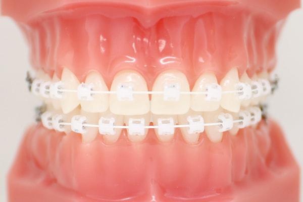 矯正歯科 (歯列矯正)
