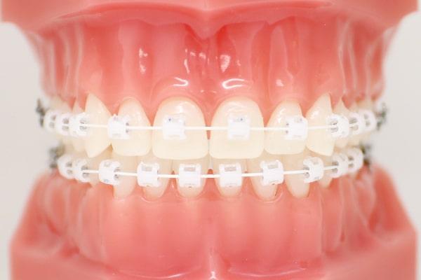 矯正歯科(ワイヤー矯正)