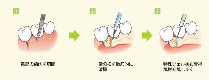 歯槽骨再生治療