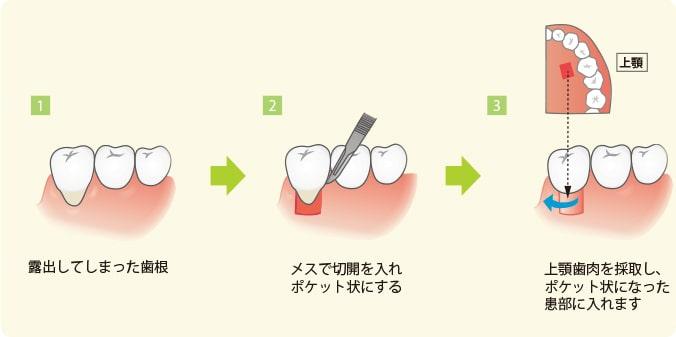 歯茎移植術