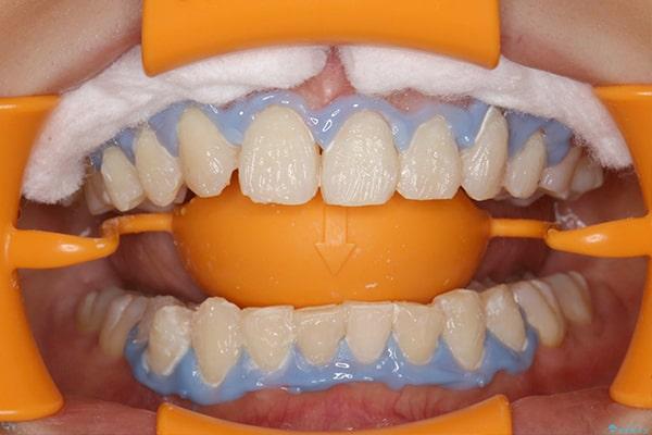 歯ぐきの保護と薬剤の塗布