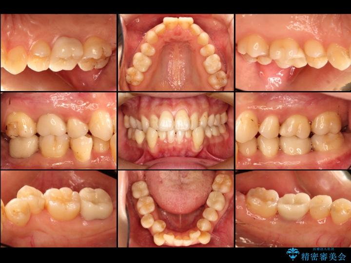 30代女性 深い虫歯と銀歯のセラミック 治療例 治療後
