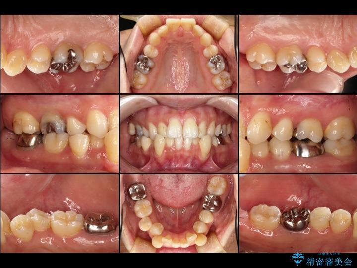 30代女性 深い虫歯と銀歯のセラミック 治療例(ビフォーアフター) 治療前