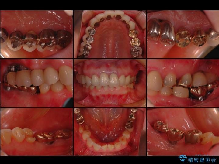 50代女性 差し歯と銀歯のセラミック治療 治療例 治療前