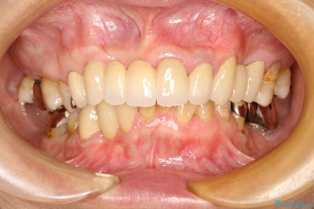 60代女性 歯茎の再生治療とオールセラミック 治療例 治療後