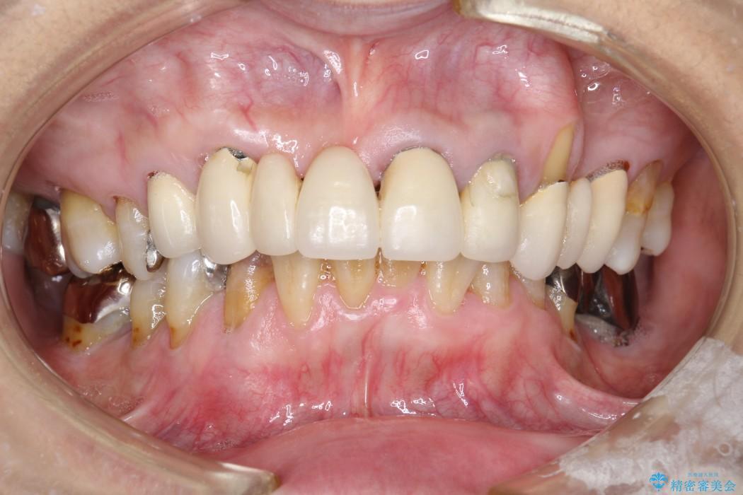 60代女性 歯茎の再生治療とセラミック治療 治療例 治療前
