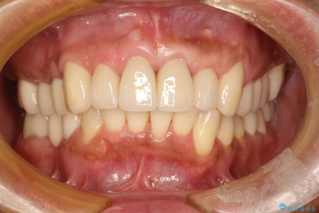 30代男性 歯周病、矯正、セラミックの総合治療 治療例 治療後