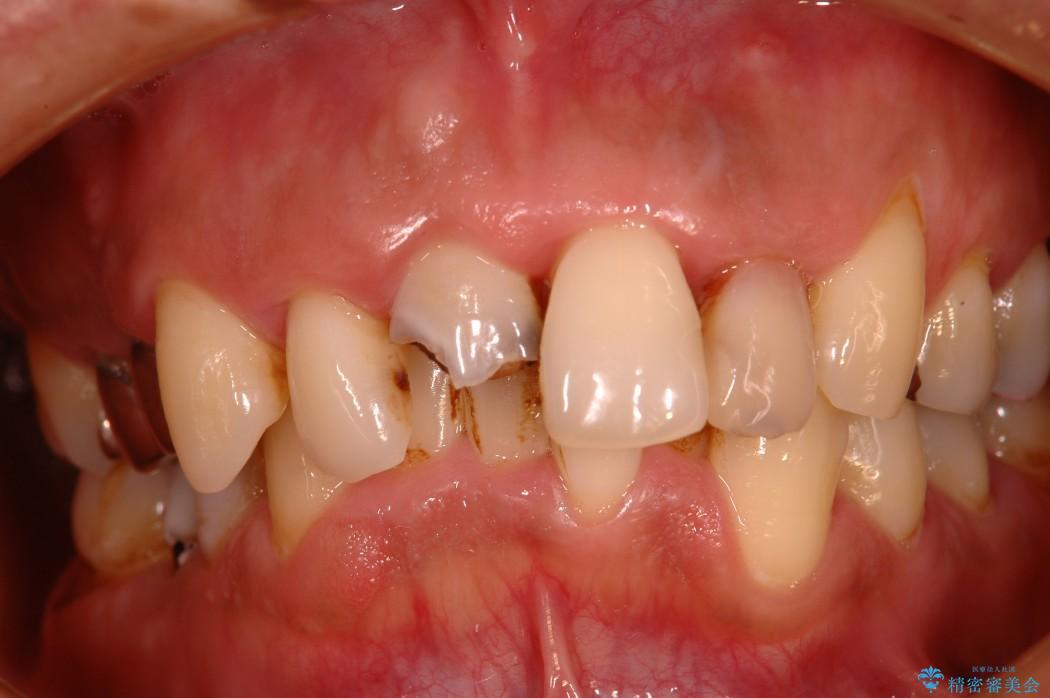 30代男性 歯周病、矯正、セラミックの総合治療 治療例 治療前