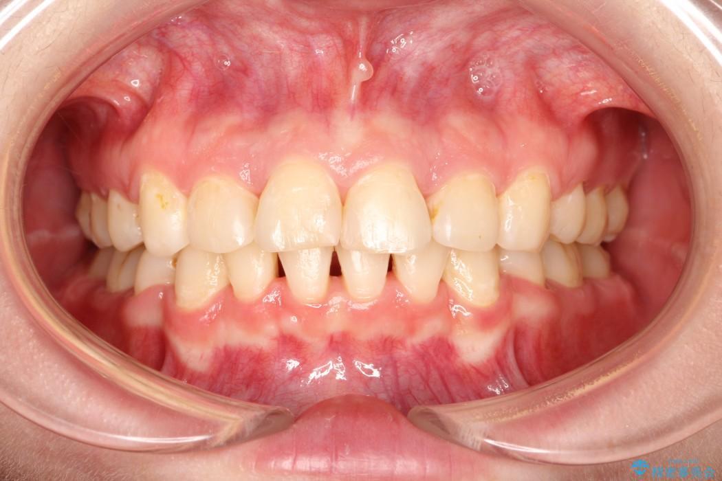 20代女性 出っ歯の矯正 治療例 治療後