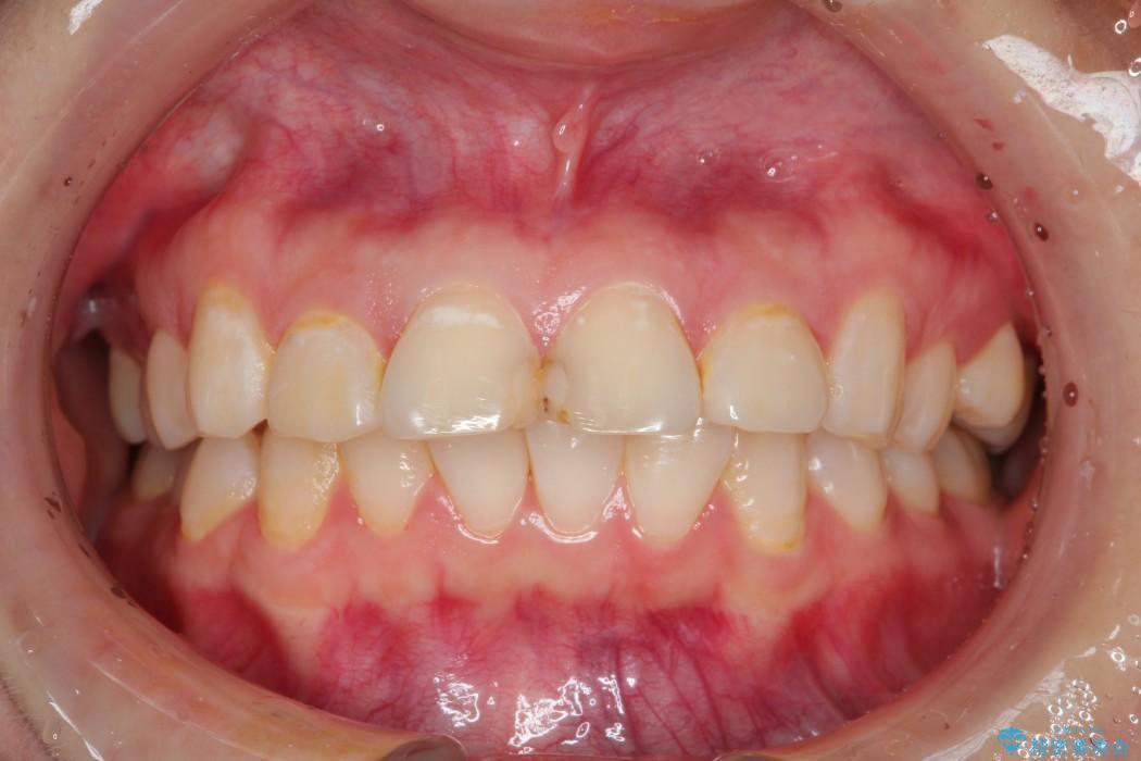 20代女性 出っ歯の矯正 治療例 治療前