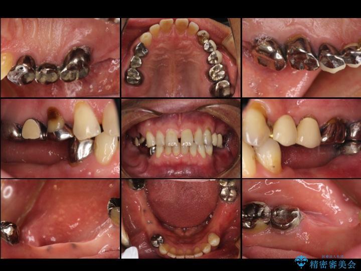 50代男性 入れ歯だった箇所のインプラント治療例 治療前