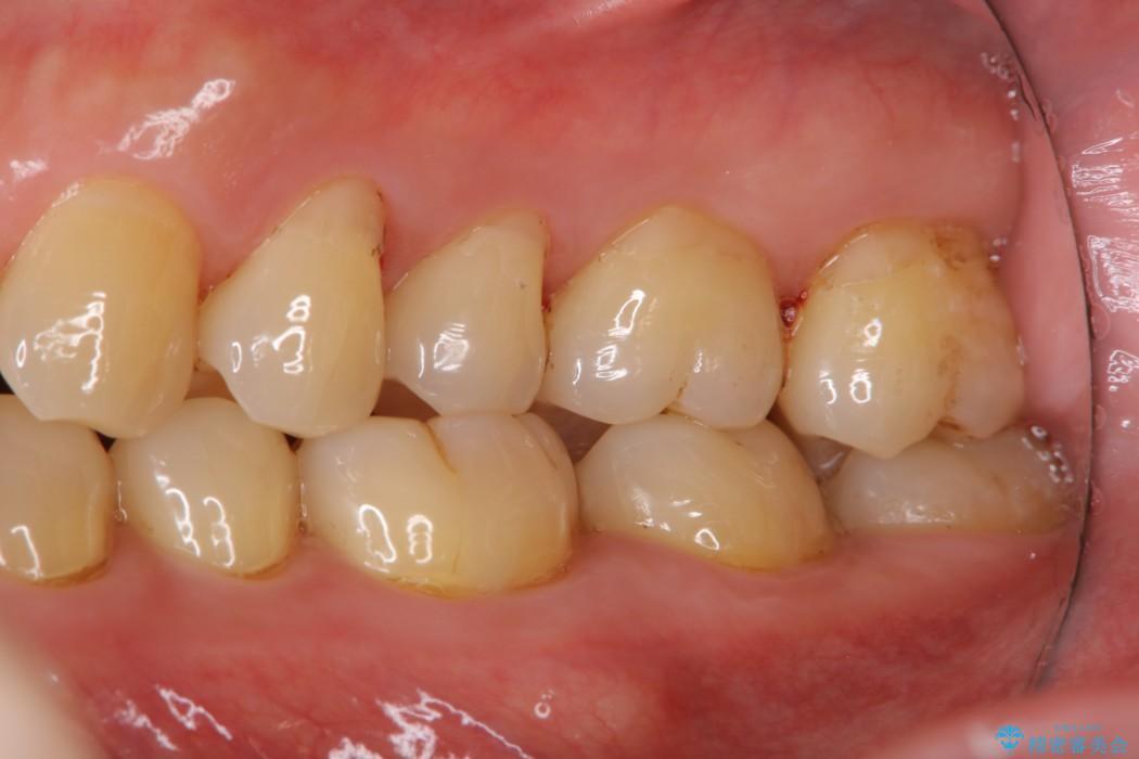 40代男性 歯にこびりついた着色のクリーニング 治療後
