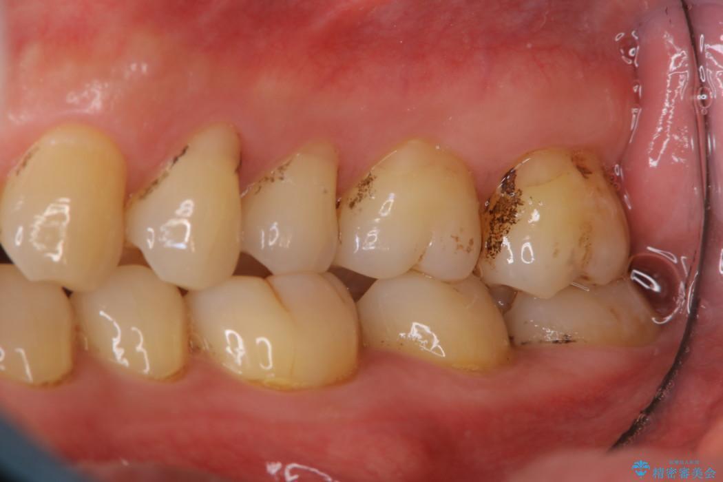 40代男性 歯にこびりついた着色のクリーニング 治療前